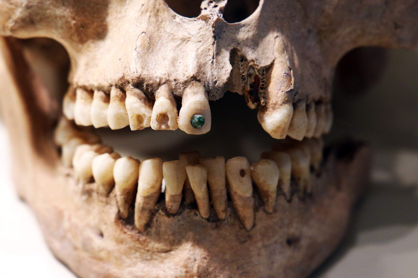 Anthony Ellis Photography: Small Sacrifices - Jewelled Teeth